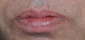 Body_Eyes_Wide_Shut_Geordie_Angry_Lips